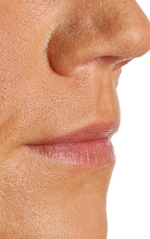Lip-Before