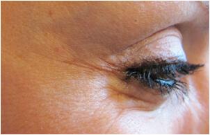 eye-botox-after