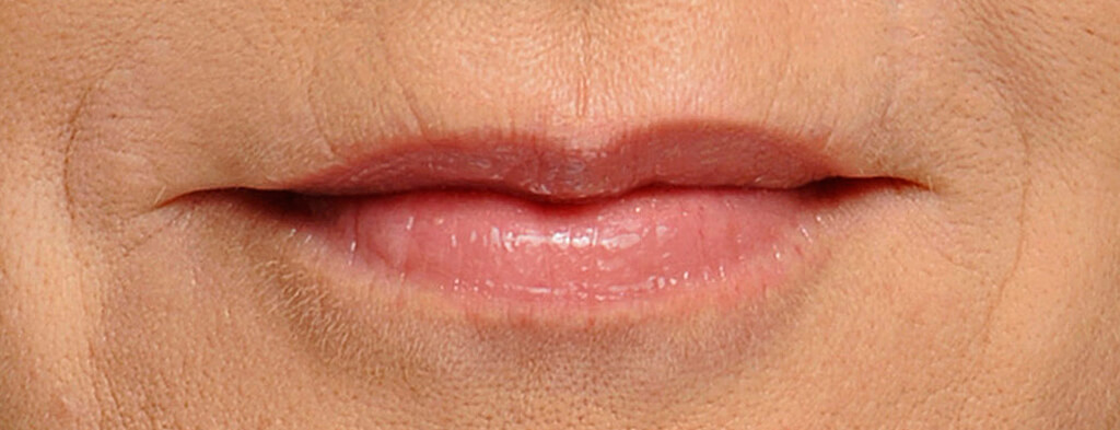 lip-botox-after