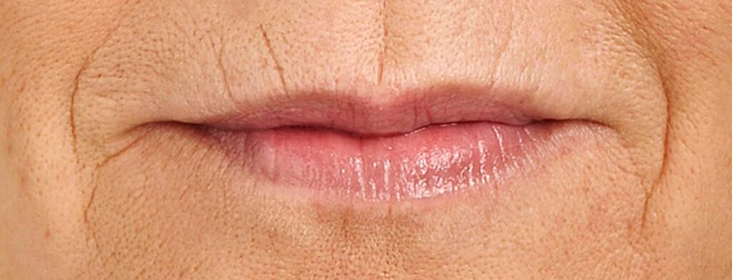 lip-botox-before